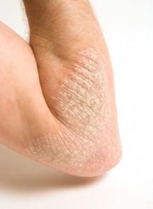 Schuppenflechte am Unterarm und Ellenbogen